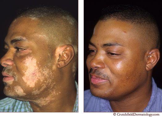Vitiligo treatment cream - Benoquin Monobenzone 20%