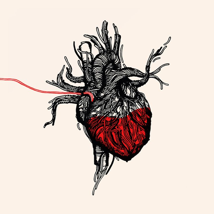Wired heart - Ironmould