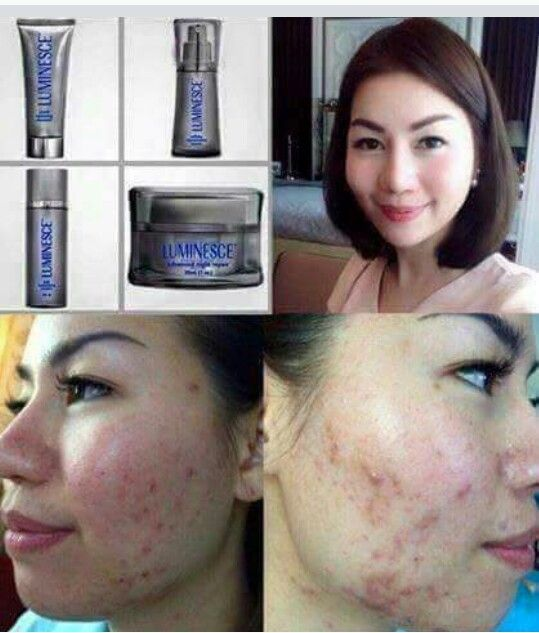 When people has a skin problem, it might effect their person life and confidence. I am glad that we can help people to build back their confidence and happiness.   www.craving.jeunesseglobal.com