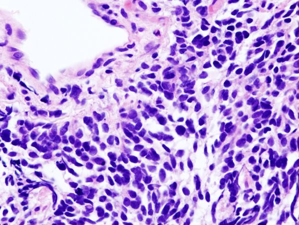 Small cell lung cancer (SCLC)   Image courtesy of Wikimedia Commons.