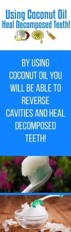 YOU CAN USE COCONUT OIL TO HEAL DECOMPOSED TEETH AND REVERSE CAVITIES!