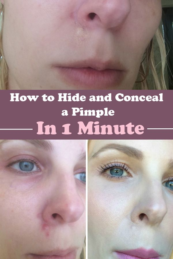 Right before a big event a nasty, red big pimple appears on your face. What to do, what to do? Read and find out how you can conceal the pimple in less than 1 minute.