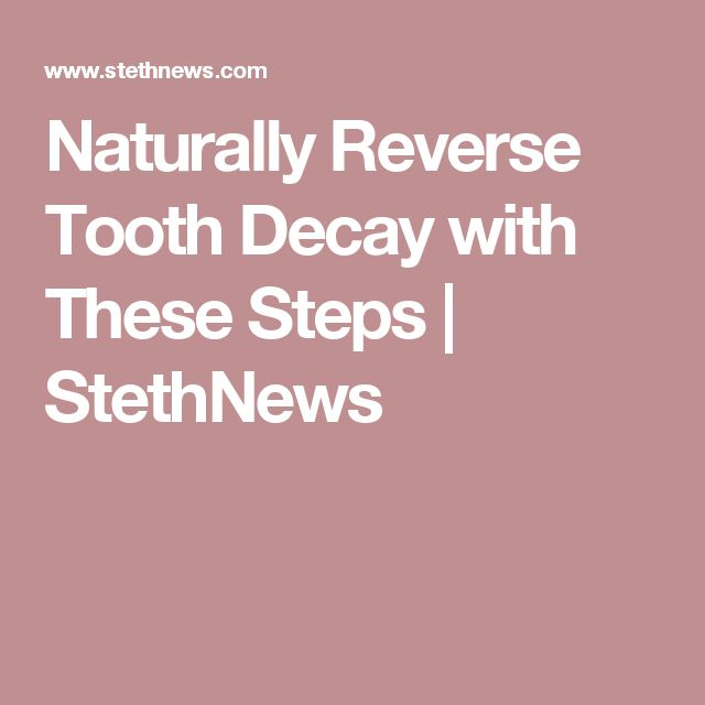 Naturally Reverse Tooth Decay with These Steps | StethNews
