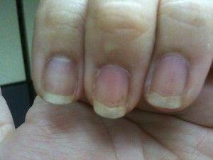 nail discoloration