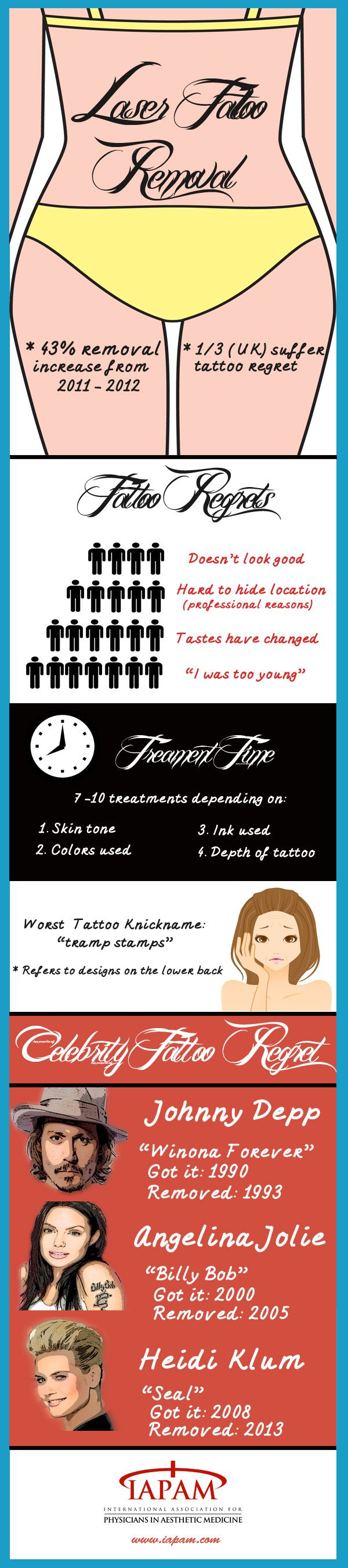 Doctors are seeing more and more people who want their tattoos removed, often because they worry that the tattoos could cause problems with employment. Laser treatments are currently the most common and effective method for removing tattoos. This infographic gives an overview of tattoo regrets, treatment times, and celebrity tattoos.
