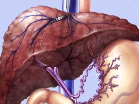 TIPSS, Transjugular Intrahepatic Porto-Systemic Shunt - YouTube