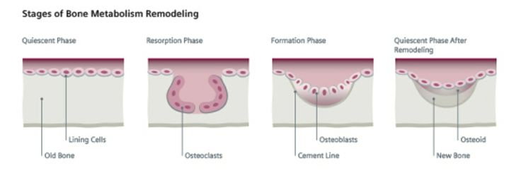 At mid-life, ppl lose bone quicker than they're able to replace it due to calcium metabolism, calcium & vit D deficiency, & changes in estrogen levels. Measuring proteins produced by osteoblasts & osteoclasts provides real-time evaluation of bone turnover, esp in the management of post-menopausal osteoporosis. Bone resorption markers can monitor progress of therapeutic interventions w/in a few weeks or months, whereas bone formation markers can take 6-12 months