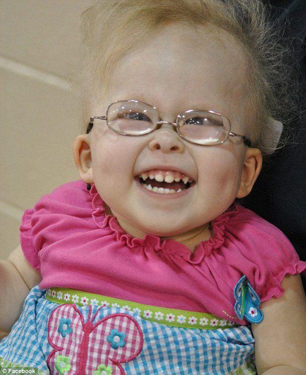 Grace Anna Rodgers, una niña estadounidense de tres años de edad, afectada por una extraña forma de enanismo que supone numerosas complicaci...