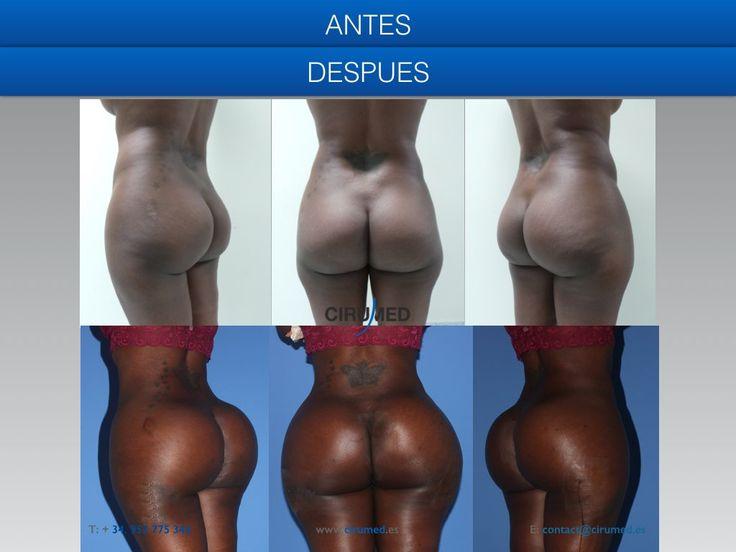 Afro Butt 43