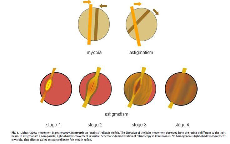 Retinoscopia e Cheratocono