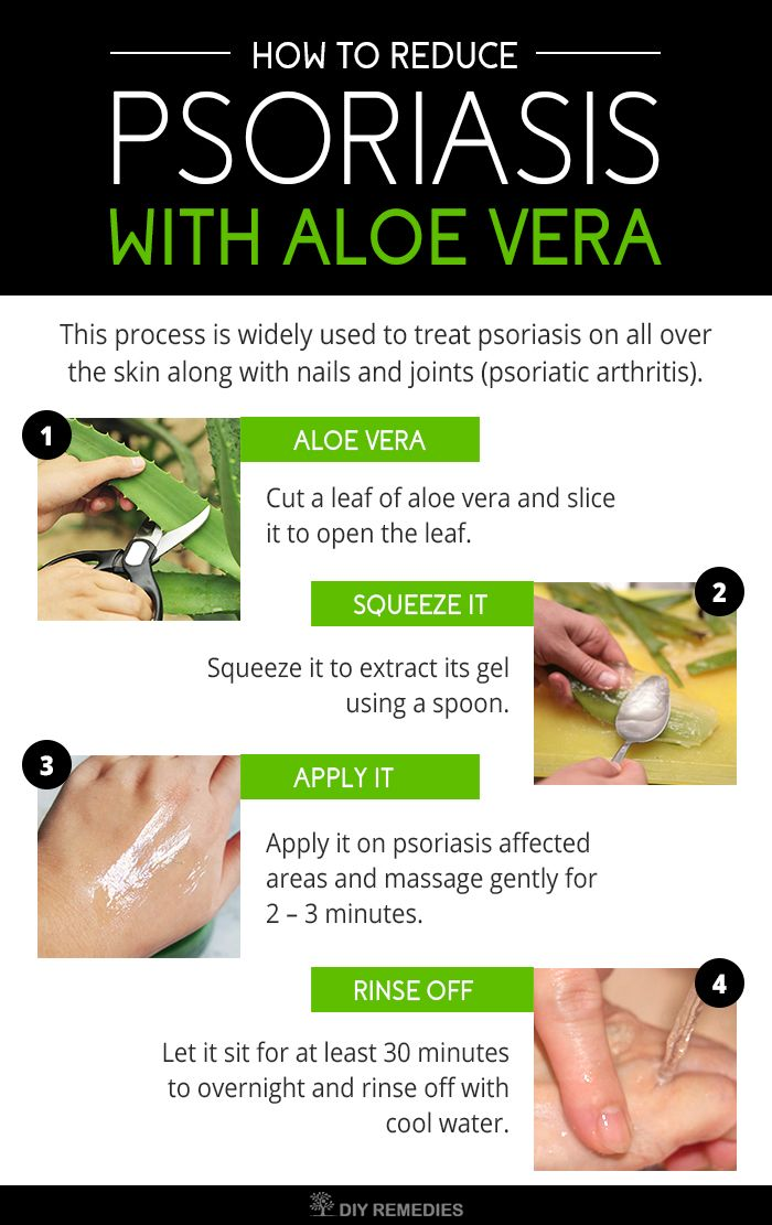 How to Reduce Psoriasis with Aloe Vera?  It's always best to use aloe vera in fresh gel or juice form. Here are the best ways of using aloe vera for treating psoriasis.  This process is widely used to treat psoriasis on all over the skin along with nails and joints (psoriatic arthritis).