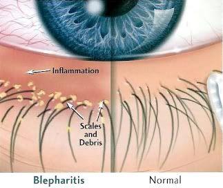 Blepharitis  www.macfarlaneoptometrist.com.au/Blepharitis