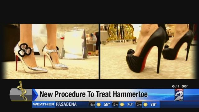 Cosmetic Foot Surgery for Hammer toe deformity - Channel 2 Houston
