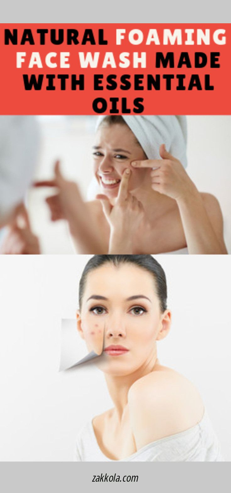 Learn more about acne. Please click here for more…