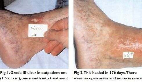 Lavender Oil - Skin Savior or Skin Irritant?- Robert Tisserand