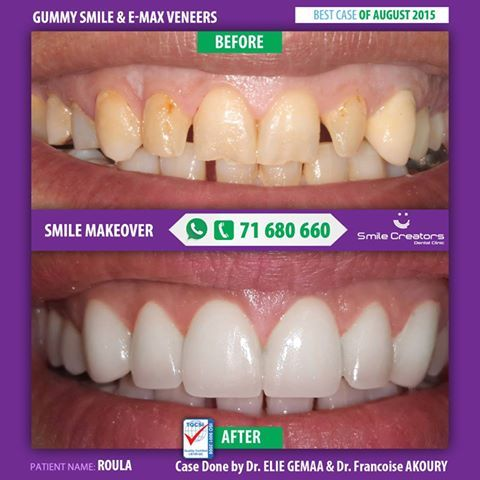 Roula never liked her smile. She didn't like the amount of gum showing while she smiles, the gaps between her teeth and the color. She always covered her mouth while smiling. She got a full smile makeover with our Exclusive E-MAX VENEERS Techniques and ZOLAR LASER gum correction. Congratulations ROULA! لم تحب رلى ابتسامتها أبداً. لطالما أزعجها بروز لثتها, الفراغات ولون أسنانها. كانت دائما تغطي فمها حين تضحك. حصل رلى على ابتسامة جديدة باستخدامنا لتقنية EMAX VENEERS و ZOLAR LASER مبروك رلى…