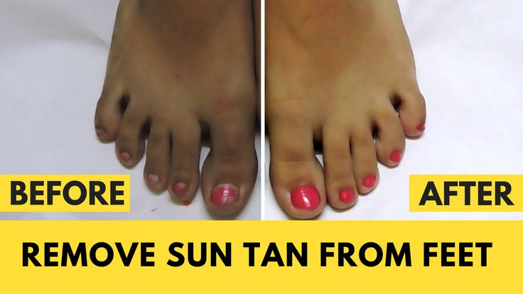 How To Remove Tan From Feet Naturally