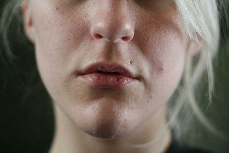 Hausmittel Gegen Spröde Lippen