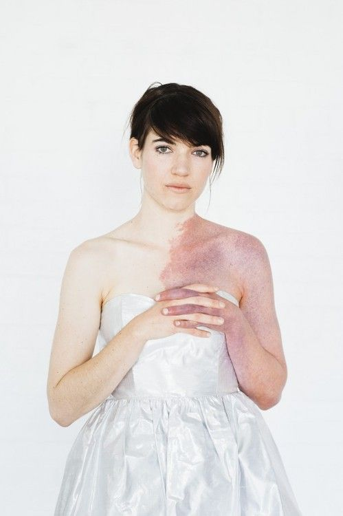 "Patience Hodgson, lead singer of the Australian band The Grates, grew up with a large, rare port wine stain birthmark, otherwise known as Klippel Trenaway Sydrome, covering half of her upper body.    ""I love my birthmark's spectrum of colour. When I'm warm it's a kind of red-purple, like the colour of some plums and when I'm cold it's a vivid, almost neon blue. I also like how it's a kind of protective barrier protecting me against non-accepting and unthoughtful people."""