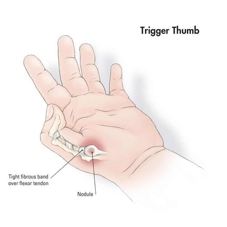 carpal tunnel and thumb side