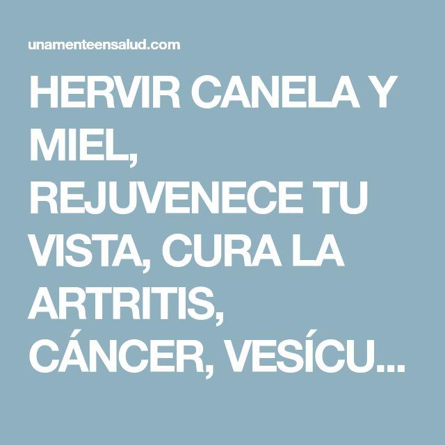 HERVIR CANELA Y MIEL, REJUVENECE TU VISTA, CURA LA ARTRITIS, CÁNCER, VESÍCULA, COLESTEROL, AYUDA A PERDER PESO, Y OTRAS 10 ENFERMEDADES MÁS #COMPARTE.