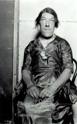 """Mary Ann Bevan (December 20, 1874 – December 26, 1933), AKA """"The Ugliest Woman in the World,"""" was known for being one of the worst looking women ever. The reason she had this ugly appearance is because she had Acromegaly, a disease making you grow rapidly. Mary was married at age 3s, the same year that she started getting symptoms of the disease. When Mary died, she weighed 168 lbs and was 5 feet 7 inches tall, which was short for someone with acromegaly."""