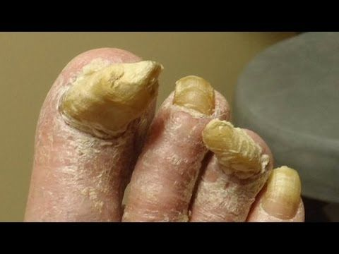 SHOCKING Toenail Fungus Cure (Works on Athlete's Foot Too) - YouTube