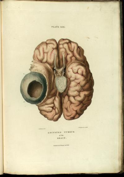129 besten Anatomy Bilder auf Pinterest | Anatomie, Grafiken und Knochen