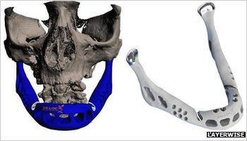 A 3D printed jaw has been implanted in to a person. Suddenly 3D printing is becoming relevant to everybody!
