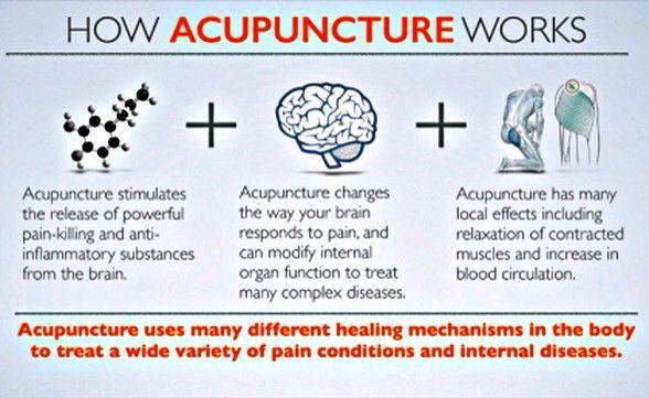 Jak działa akupunktura?  prof Enji