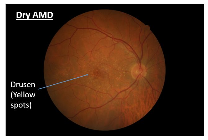 Dry-AMD.png (671×453)