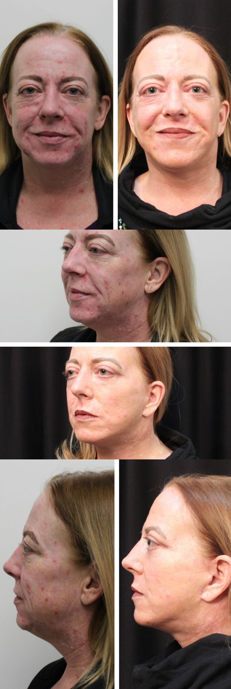 One of our patients who had four different procedures: face lift, co2 lazer, upper and lower eyelid lifts. Amazing results!! #plasticsurgery #cosmeticsurgery #slc #utah #medicalspa #facelift #co2laser #eyelidsurgery #amazing #work #look #Revivology