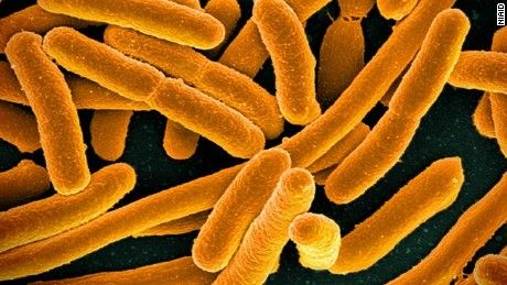 The United States' first known case of a superbug that cannot be killed by a last resort-style kind of antibiotic was detailed in a report by the U.S. Department of Defense on Thursday.