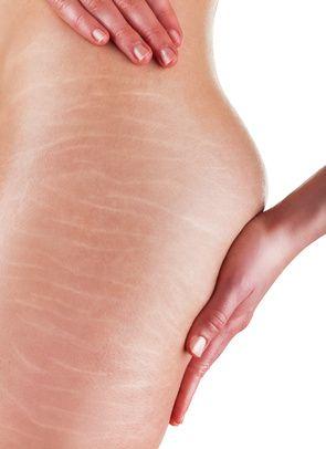Vergetures femmes cicatrices les soigner avec des méthodes naturelles