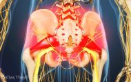 2 Little-Known Treatments for Piriformis Syndrome