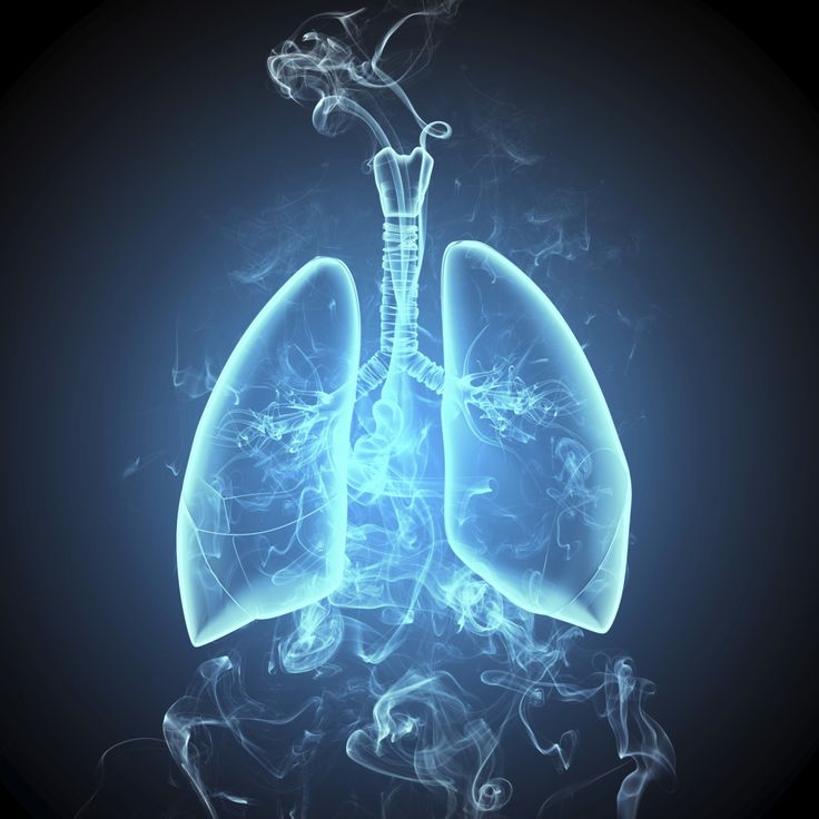 One of the top risk factors for lung cancer is smoking. Other risk factors include family history, exposure to secondhand smoking, radiation therapy to chest, diet, and radon.