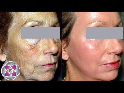 Non Surgical Facelift Before and After - YouTube