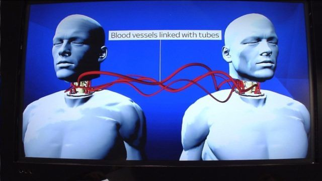 9JABREEZELAND: World's First Head Transplant Is Happening, Just 8...