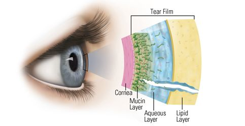 Best contact lenses for dry eye