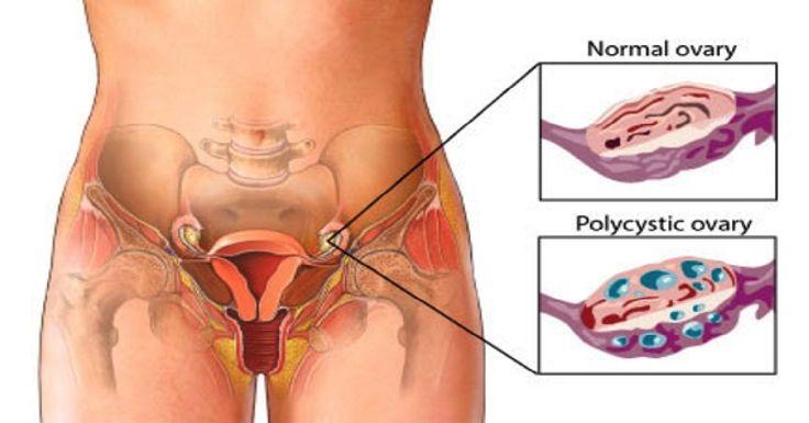 Limpia Los Quistes De Ovario Con Las Mejores Recetas! .. Los Quistes De Ovario Causan Hinchazón, Dolor Abdominal Bajo o Dolor De Espalda – Super Remedios