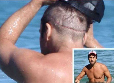 Bad Effects of Hair Transplant