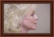 If you are planning for the facelift surgery in India then you should visit Aesthetics Medispa  At least once. Check out the links for more details http://www.aestheticsmedispa.in/cosmetic-surgeries/face/face-lift-a-neck-lift.html
