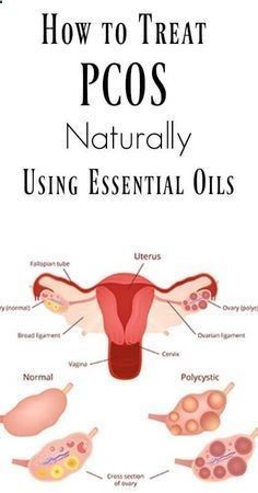 Ovarian Cyst Remedies - How to Treat PCOS Naturally Using Essential Oils More Than 157,000 Women Worldwide Have Been Successful in Treating Their Ovarian Cysts In 30-60 Days, and Tackle The Root Cause Of PCOS Using the Ovarian Cyst Miracle™ System!