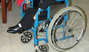 New treatment for Duchenne muscular dystrophy