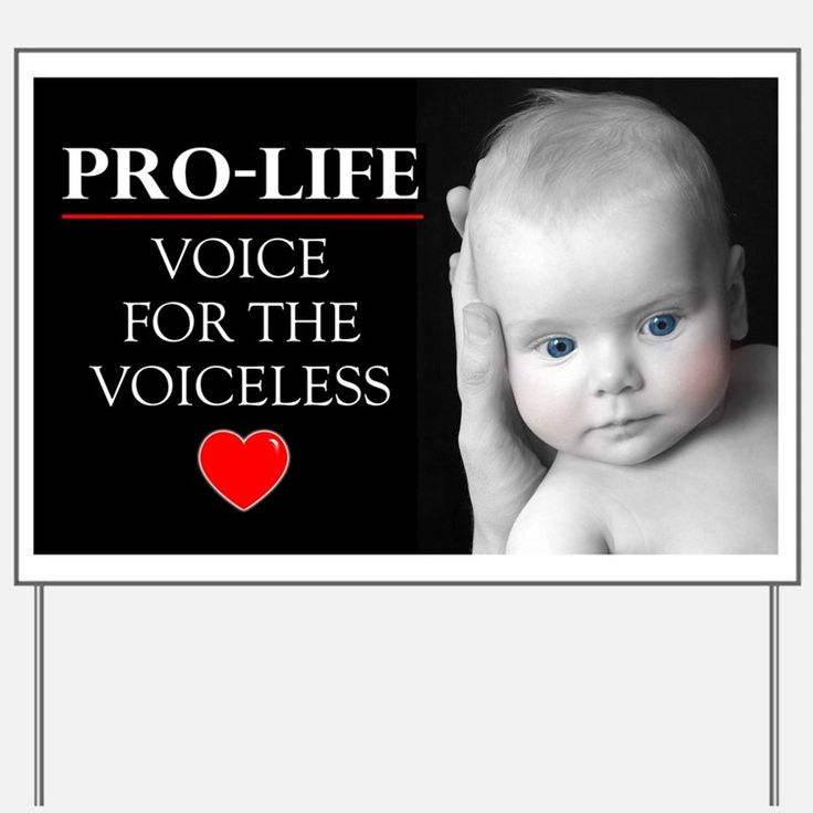 Backyard Abortion: 1642 Best Babies Lives Matter! Images On Pinterest