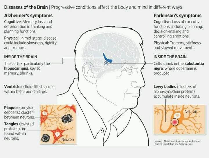 A comparison between Alzheimers disease and Parkinsons diseases. Repinned by SOS Inc. Resources pinterest.com/sostherapy/.
