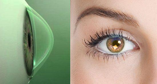 QUERATOCONO-  es una condición poco común en la córnea (la ventana transparente del ojo), la cuál hace que la córnea se adelgace y desarrolle una protuberancia en forma de cono.