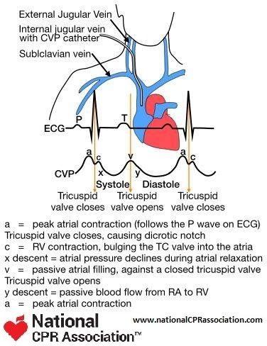 Central Venous Pressure Monitoring #CVP #medicalstudent #cardiology #nationalCPRassociation #nationalCPR