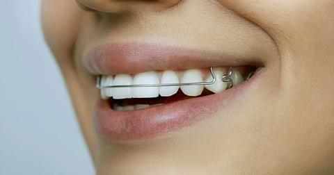 Best 25 Teeth Retainer Ideas On Pinterest Braces