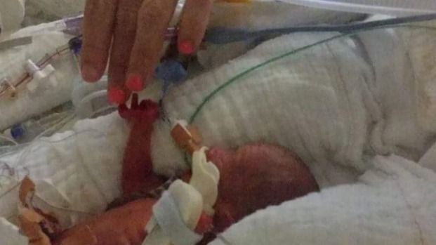 Australian mum delivers baby weighing just 510 grams at 25 weeks in NZ | Stuff.co.nz